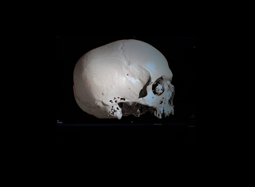 Cráneo 1